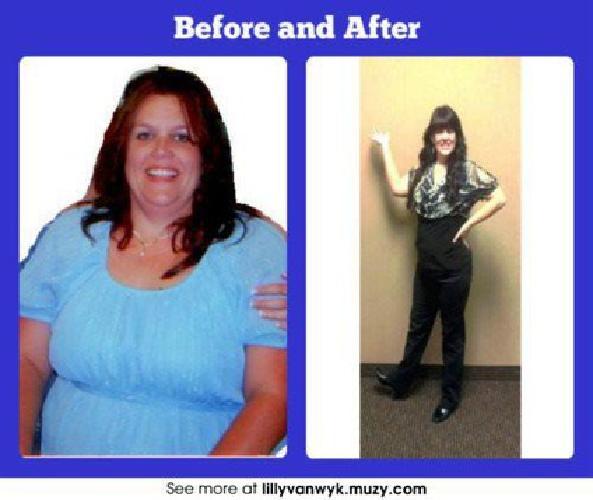 Weight loss surgery financing
